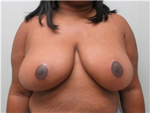 Breast Reduction After Photo by Richard Greco, MD; Savannah, GA - Case 30653