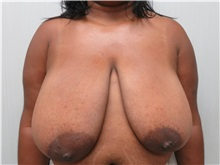 Breast Reduction Before Photo by Richard Greco, MD; Savannah, GA - Case 30653