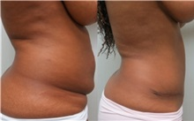 Tummy Tuck After Photo by Richard Greco, MD; Savannah, GA - Case 31445