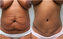 Tummy Tuck Before Photo by Richard Greco, MD; Savannah, GA - Case 31445