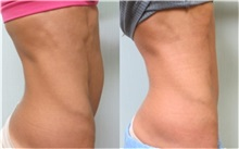 Tummy Tuck After Photo by Richard Greco, MD; Savannah, GA - Case 31446