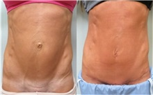 Tummy Tuck Before Photo by Richard Greco, MD; Savannah, GA - Case 31446