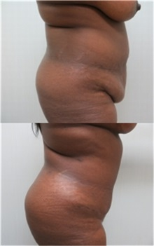 Tummy Tuck After Photo by Richard Greco, MD; Savannah, GA - Case 31447