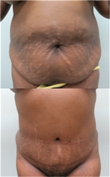 Tummy Tuck Before Photo by Richard Greco, MD; Savannah, GA - Case 31447