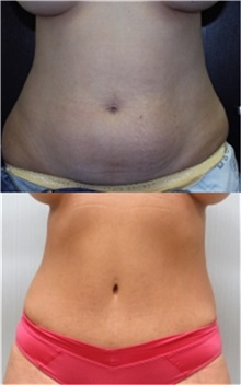 Tummy Tuck Before Photo by Richard Greco, MD; Savannah, GA - Case 31449
