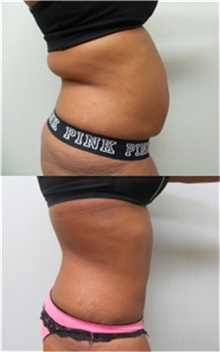 Tummy Tuck After Photo by Richard Greco, MD; Savannah, GA - Case 31450