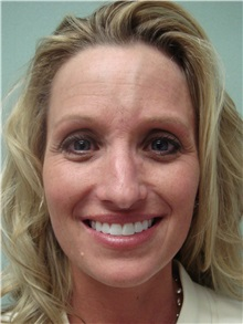 Rhinoplasty Before Photo by Richard Greco, MD; Savannah, GA - Case 31452