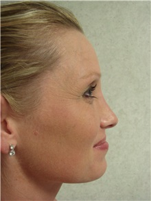 Rhinoplasty After Photo by Richard Greco, MD; Savannah, GA - Case 31452
