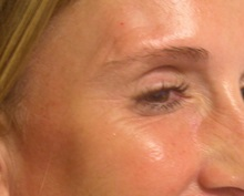 Botulinum Toxin After Photo by Richard Greco, MD; Savannah, GA - Case 31465