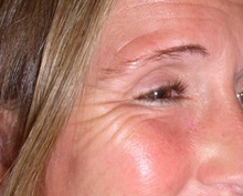 Botulinum Toxin Before Photo by Richard Greco, MD; Savannah, GA - Case 31465