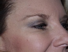 Botulinum Toxin After Photo by Richard Greco, MD; Savannah, GA - Case 31467
