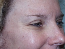 Botulinum Toxin Before Photo by Richard Greco, MD; Savannah, GA - Case 31467