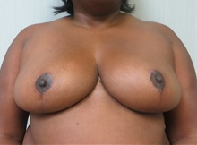 Breast Reduction After Photo by Richard Greco, MD; Savannah, GA - Case 31469
