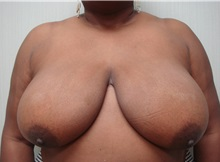 Breast Reduction Before Photo by Richard Greco, MD; Savannah, GA - Case 31469