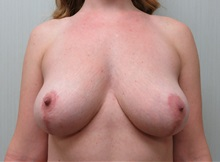 Breast Reduction After Photo by Richard Greco, MD; Savannah, GA - Case 31470