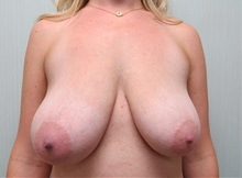 Breast Reduction Before Photo by Richard Greco, MD; Savannah, GA - Case 31470