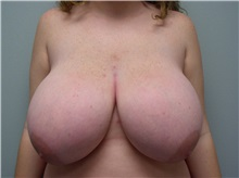 Breast Reduction Before Photo by Richard Greco, MD; Savannah, GA - Case 31471