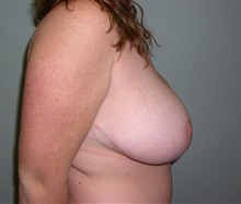 Breast Reduction After Photo by Richard Greco, MD; Savannah, GA - Case 31471