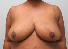 Breast Reduction After Photo by Richard Greco, MD; Savannah, GA - Case 31472