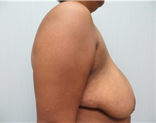 Breast Reduction Before Photo by Richard Greco, MD; Savannah, GA - Case 31472