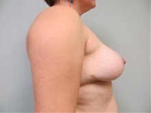 Breast Reduction After Photo by Richard Greco, MD; Savannah, GA - Case 31473