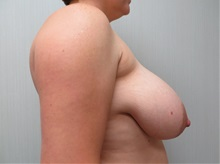 Breast Reduction Before Photo by Richard Greco, MD; Savannah, GA - Case 31473