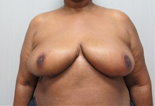 Breast Reduction After Photo by Richard Greco, MD; Savannah, GA - Case 31474