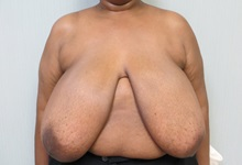 Breast Reduction Before Photo by Richard Greco, MD; Savannah, GA - Case 31474