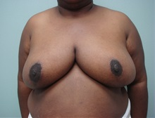 Breast Reduction After Photo by Richard Greco, MD; Savannah, GA - Case 31475