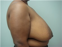 Breast Reduction Before Photo by Richard Greco, MD; Savannah, GA - Case 31475