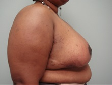 Breast Reduction After Photo by Richard Greco, MD; Savannah, GA - Case 31476