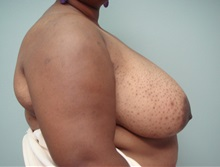 Breast Reduction Before Photo by Richard Greco, MD; Savannah, GA - Case 31476