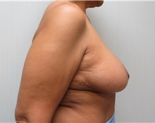 Breast Reduction After Photo by Richard Greco, MD; Savannah, GA - Case 31477