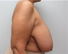Breast Reduction Before Photo by Richard Greco, MD; Savannah, GA - Case 31477