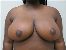 Breast Reduction After Photo by Richard Greco, MD; Savannah, GA - Case 31478
