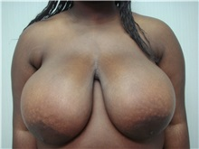 Breast Reduction Before Photo by Richard Greco, MD; Savannah, GA - Case 31478