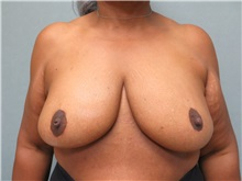 Breast Reduction After Photo by Richard Greco, MD; Savannah, GA - Case 31479
