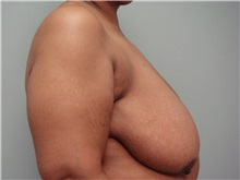 Breast Reduction Before Photo by Richard Greco, MD; Savannah, GA - Case 31479