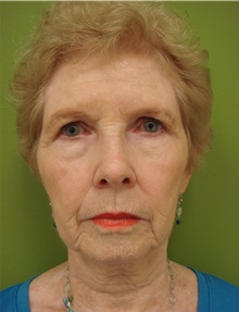 Brow Lift Before Photo by Richard Greco, MD; Savannah, GA - Case 31480