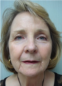 Brow Lift After Photo by Richard Greco, MD; Savannah, GA - Case 31481