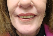 Dermabrasion After Photo by Richard Greco, MD; Savannah, GA - Case 31484