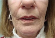 Dermabrasion Before Photo by Richard Greco, MD; Savannah, GA - Case 31484