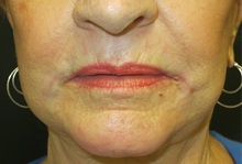 Dermabrasion After Photo by Richard Greco, MD; Savannah, GA - Case 31485