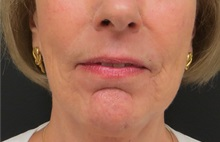 Dermabrasion After Photo by Richard Greco, MD; Savannah, GA - Case 31487