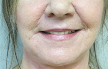 Dermabrasion After Photo by Richard Greco, MD; Savannah, GA - Case 31488
