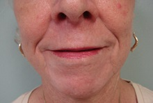 Dermabrasion After Photo by Richard Greco, MD; Savannah, GA - Case 31489