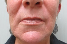 Dermabrasion After Photo by Richard Greco, MD; Savannah, GA - Case 31490