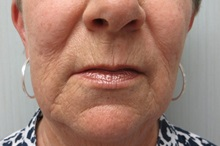Dermabrasion Before Photo by Richard Greco, MD; Savannah, GA - Case 31490