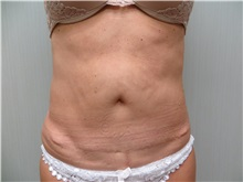 Liposuction After Photo by Richard Greco, MD; Savannah, GA - Case 31895
