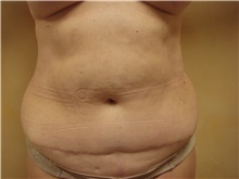 Liposuction Before Photo by Richard Greco, MD; Savannah, GA - Case 31895